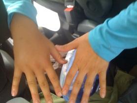 swollen right hand